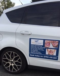 Mobile Teeth Whitening Car