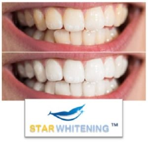 Teeth Whitening Before and After picture leigh on sea essex