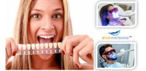 Book Teeth Whitening Treatment