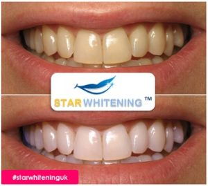 teeth whitening before and after picture 2