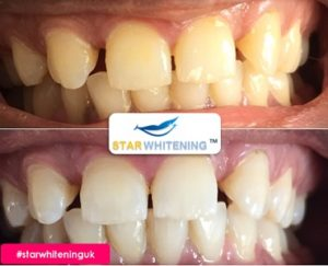 before and after teeth whitening Southend Essex
