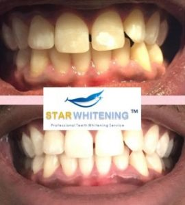 teeth whitening before and after picture 6