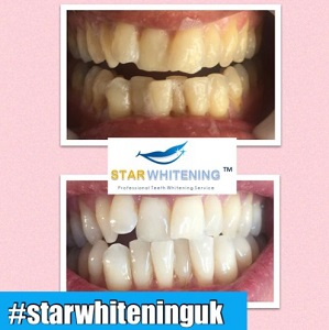 before and after teeth whitening picture 7