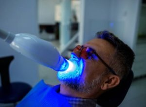 laser teeth whitening with man in picture
