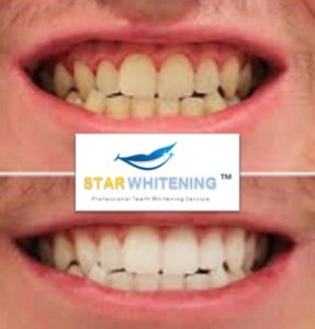 Before and After teeth whitening essex
