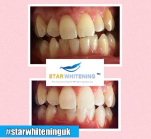 teeth whitening before and after pic Essex