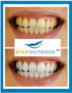 Teeth whitening before and after picture Lorna in Essex