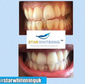 teeth whitening before and after lady essex