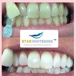teeth whitening before and after with tooth shade assessment